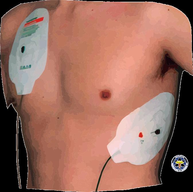 AED – namestitev elektrod